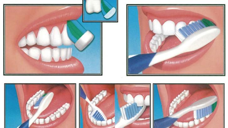 ¿Quieres evitar problemas en tus dientes?
